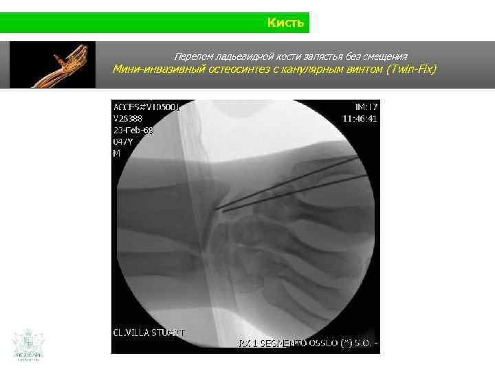 Кисть Перелом ладьевидной кости запястья без смещения Мини-инвазивный остеосинтез с канулярным винтом (Twin-Fix)