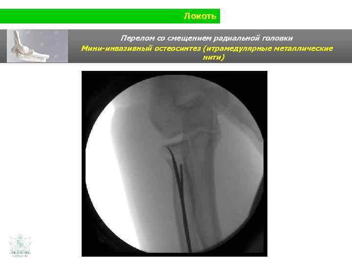 Локоть Перелом со смещением радиальной головки Мини-инвазивный остеосинтез (итрамедулярные металлические нити)