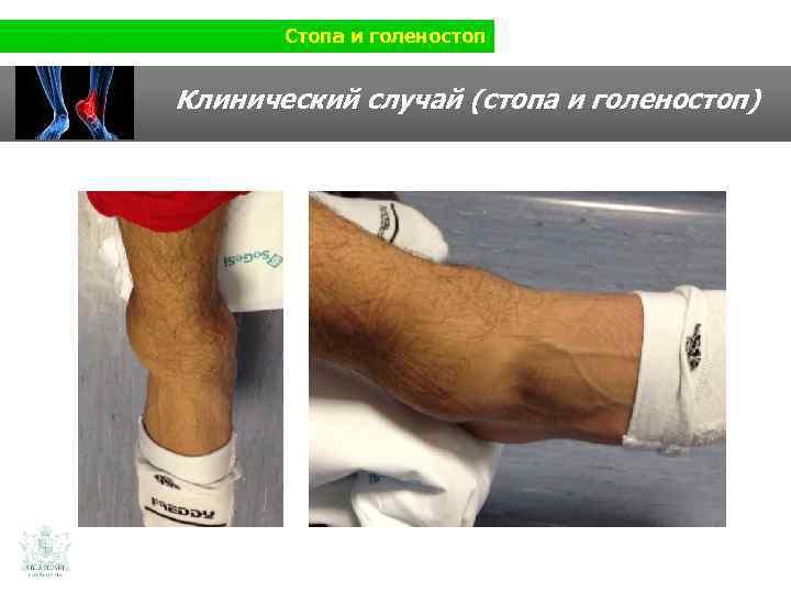 Стопа и голеностоп Клинический случай (стопа и голеностоп)