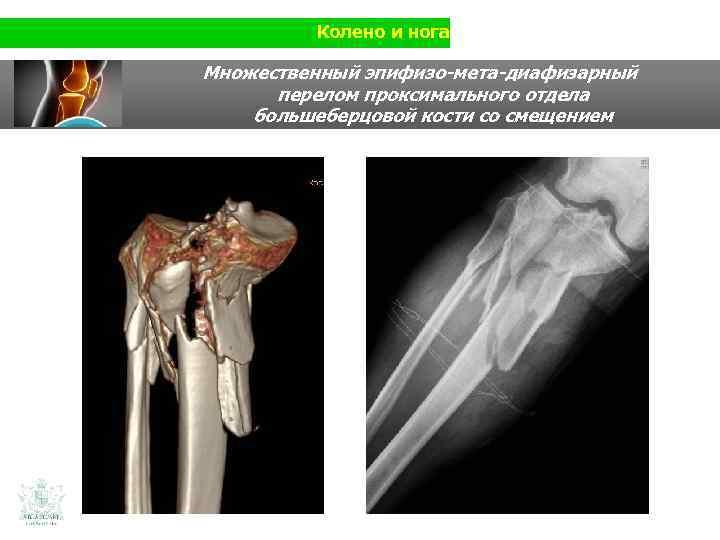 Колено и нога Множественный эпифизо-мета-диафизарный перелом проксимального отдела большеберцовой кости со смещением