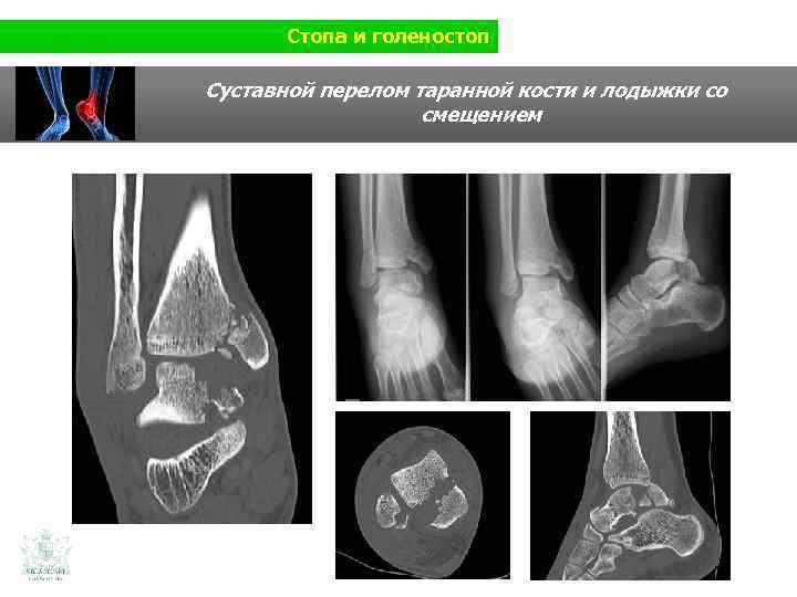 Стопа и голеностоп Суставной перелом таранной кости и лодыжки со смещением