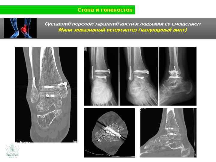 Стопа и голеностоп Суставной перелом таранной кости и лодыжки со смещением Мини-инвазивный остеосинтез (канулярный
