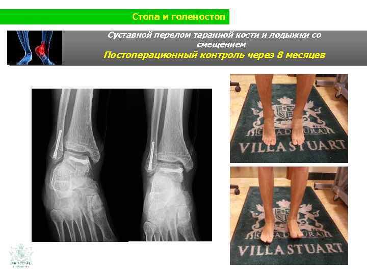 Стопа и голеностоп Суставной перелом таранной кости и лодыжки со смещением Постоперационный контроль через