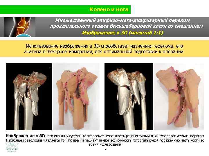 Колено и нога Множественный эпифизо-мета-диафизарный перелом проксимального отдела большеберцовой кости со смещением Изображение в
