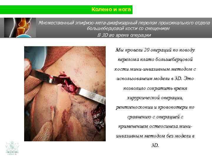 Колено и нога Множественный эпифизо-мета-диафизарный перелом проксимального отдела большеберцовой кости со смещением В 3