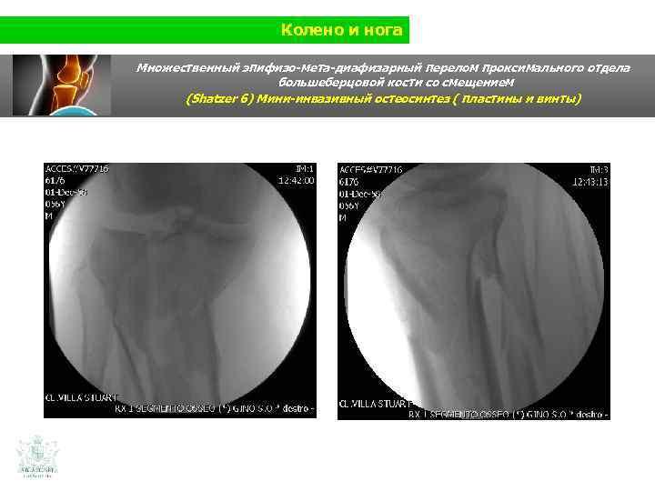 Колено и нога Множественный эпифизо-мета-диафизарный перелом проксимального отдела большеберцовой кости со смещением (Shatzer 6)