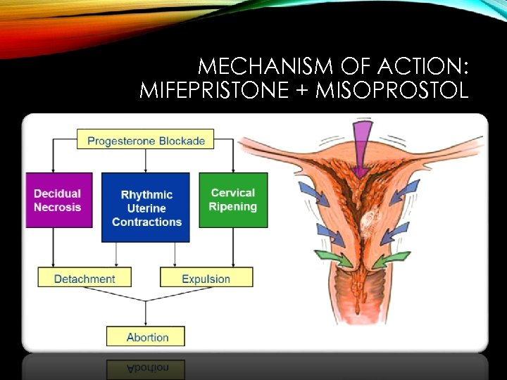 MECHANISM OF ACTION: MIFEPRISTONE + MISOPROSTOL