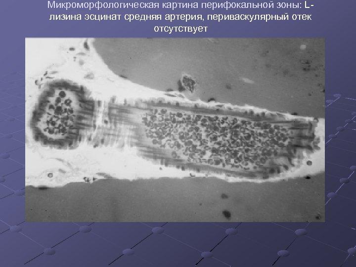 Микроморфологическая картина перифокальной зоны: Lлизина эсцинат средняя артерия, периваскулярный отек отсутствует