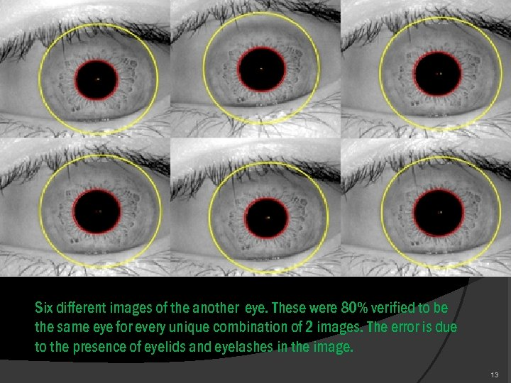 Six different images of the another eye. These were 80% verified to be the