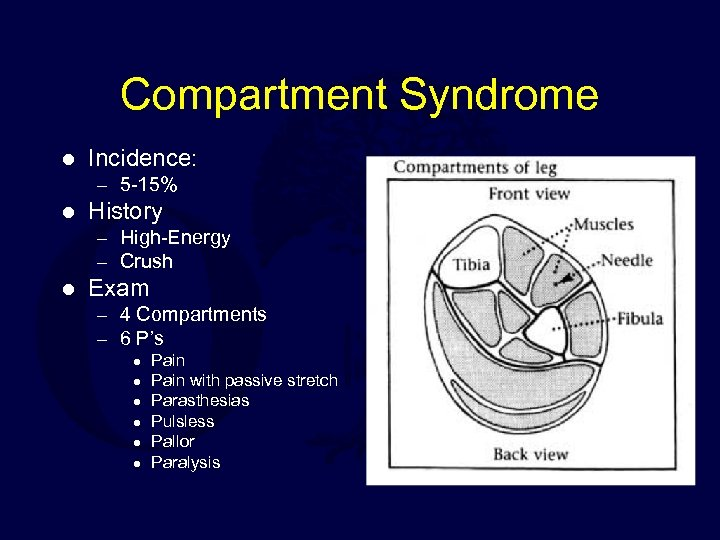 Compartment Syndrome l Incidence: – 5 -15% l History – High-Energy – Crush l