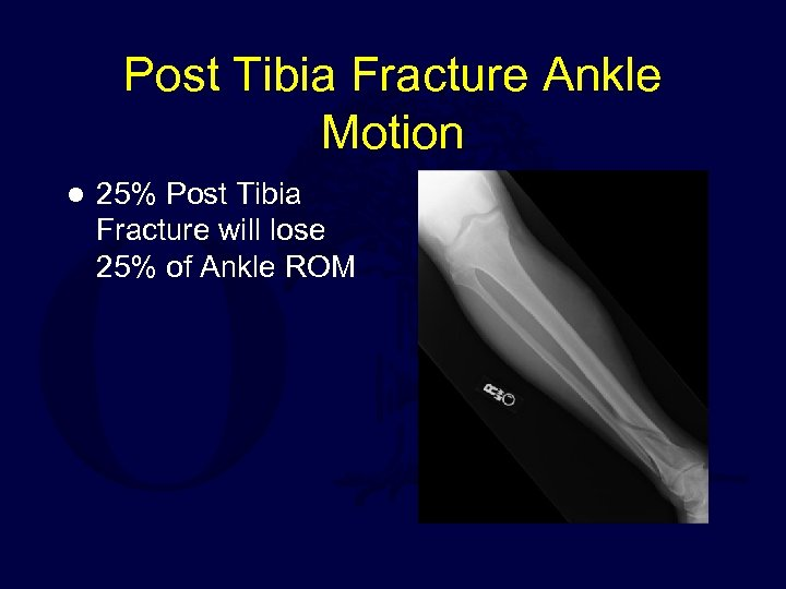 Post Tibia Fracture Ankle Motion l 25% Post Tibia Fracture will lose 25% of