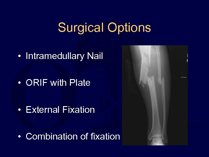 Surgical Options • Intramedullary Nail • ORIF with Plate • External Fixation • Combination