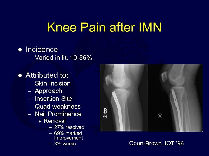 Knee Pain after IMN l Incidence – Varied in lit. 10 -86% l Attributed