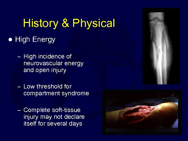 History & Physical l High Energy – High incidence of neurovascular energy and open