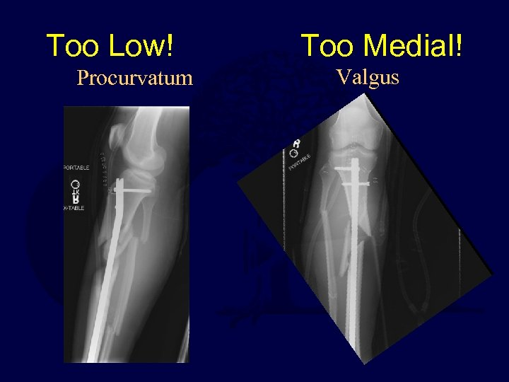 Too Low! Procurvatum Too Medial! Valgus