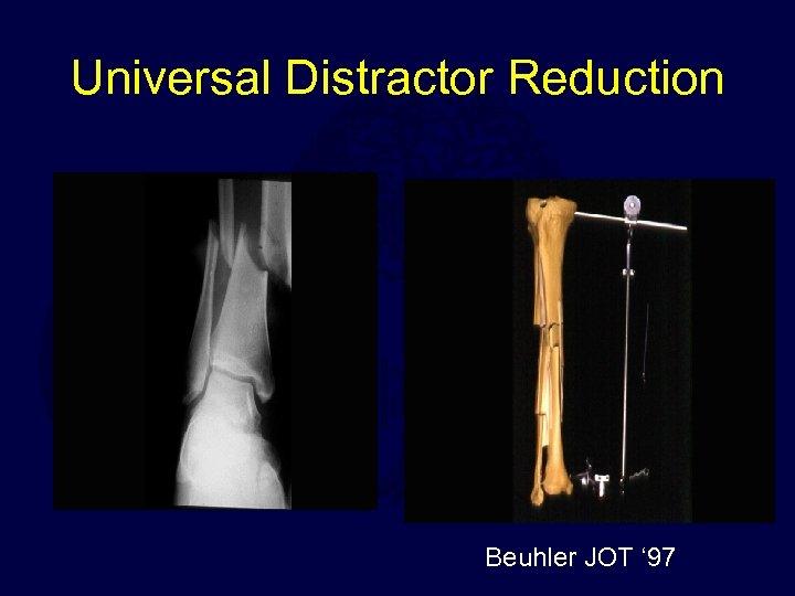 Universal Distractor Reduction Beuhler JOT ' 97