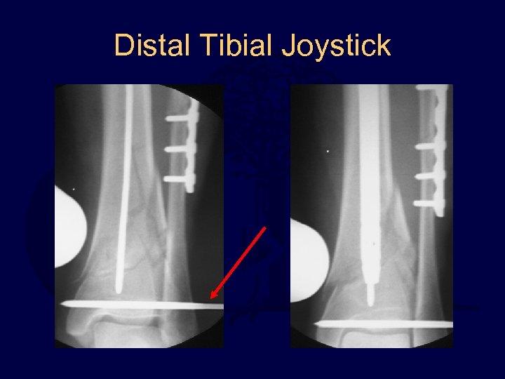 Distal Tibial Joystick
