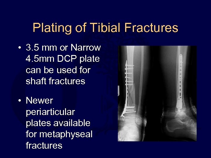 Plating of Tibial Fractures • 3. 5 mm or Narrow 4. 5 mm DCP