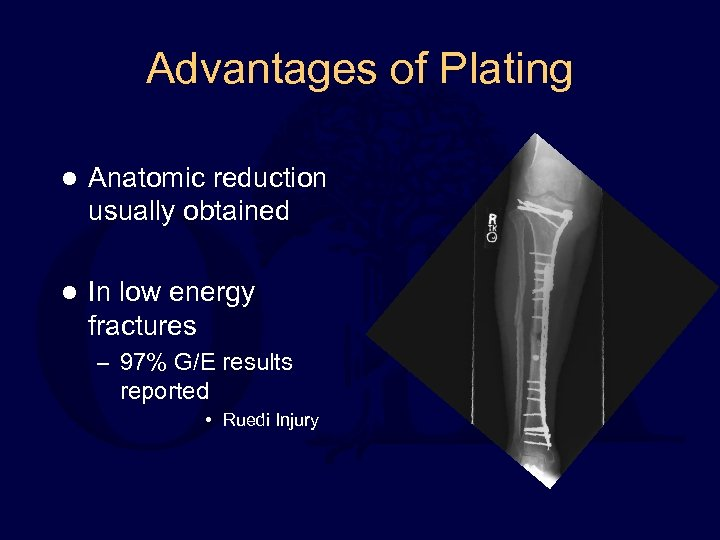 Advantages of Plating l Anatomic reduction usually obtained l In low energy fractures –
