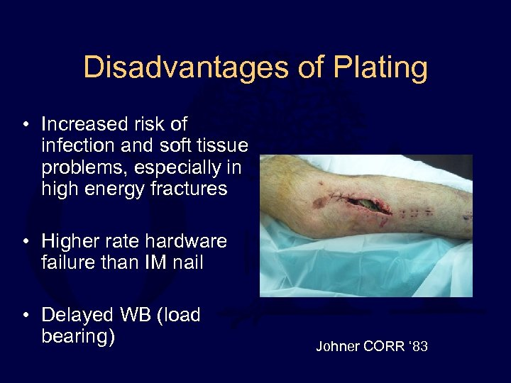 Disadvantages of Plating • Increased risk of infection and soft tissue problems, especially in