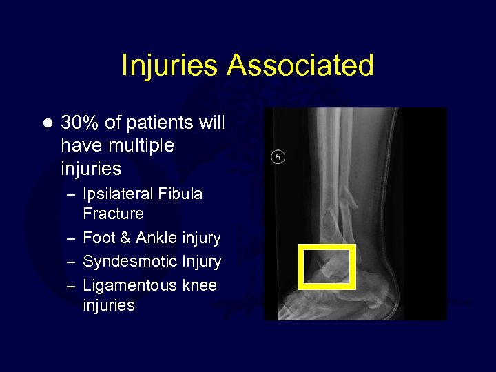 Injuries Associated l 30% of patients will have multiple injuries – Ipsilateral Fibula Fracture