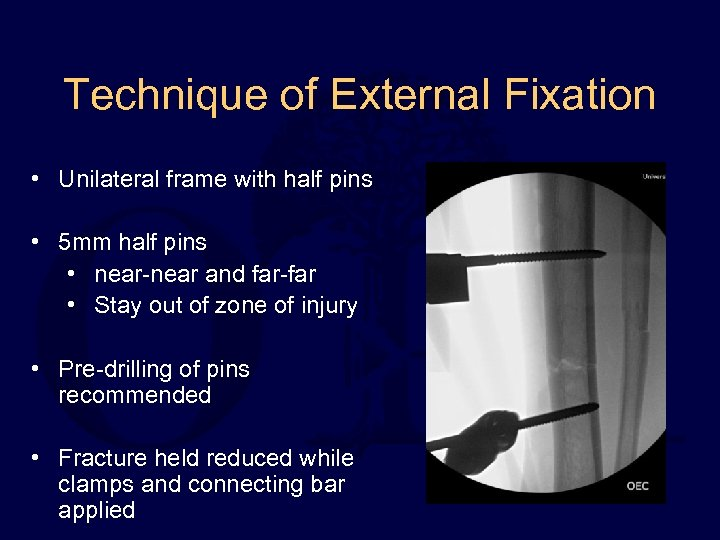 Technique of External Fixation • Unilateral frame with half pins • 5 mm half
