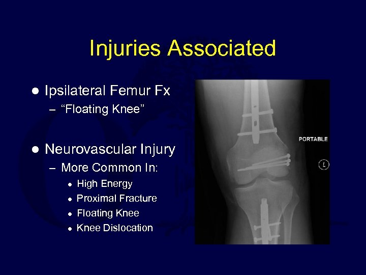 "Injuries Associated l Ipsilateral Femur Fx – ""Floating Knee"" l Neurovascular Injury – More"