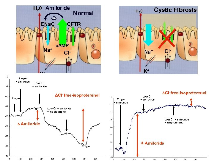 H 20 Amiloride ENa. C Na+ Ringer + amiloride Cystic Fibrosis H 20 Normal