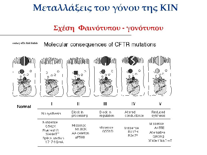 Μεταλλάξεις του γόνου της ΚΙΝ Σχέση Φαινότυπου - γονότυπου