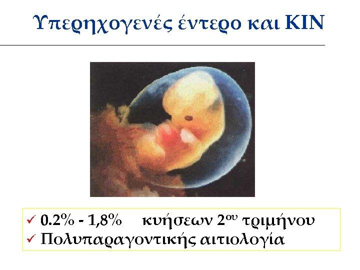 Υπερηχογενές έντερο και ΚΙΝ ü 0. 2% - 1, 8% κυήσεων 2ου τριμήνου ü