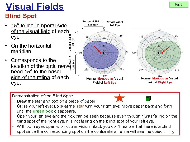 Visual Fields Pg. 3 Blind Spot F F Normal Monocular Visual Field of Left