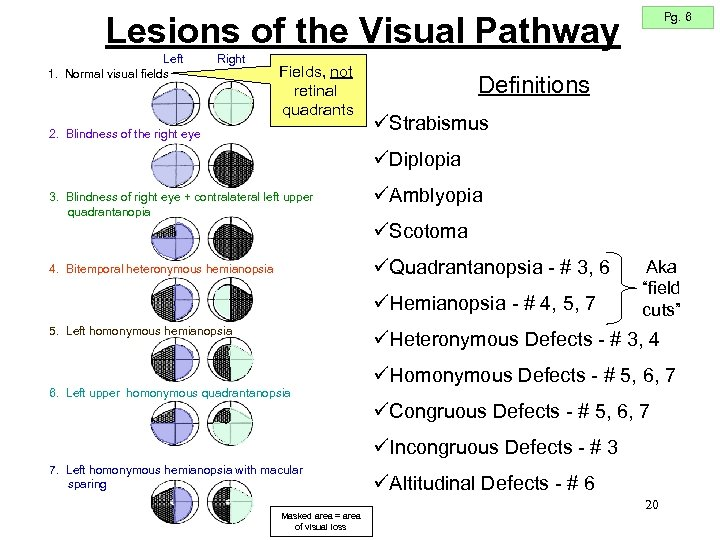 Pg. 6 Lesions of the Visual Pathway Left 1. Normal visual fields Right Fields,