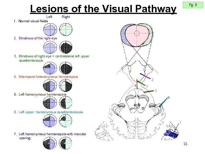 Pg. 6 Lesions of the Visual Pathway Left 1. Normal visual fields Right 2.