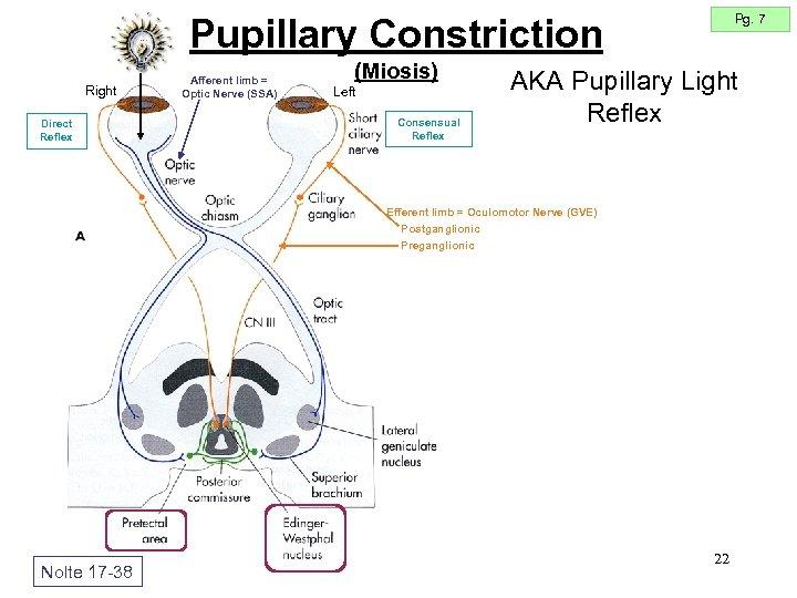 Pg. 7 Pupillary Constriction Right Direct Reflex Afferent limb = Optic Nerve (SSA) (Miosis)