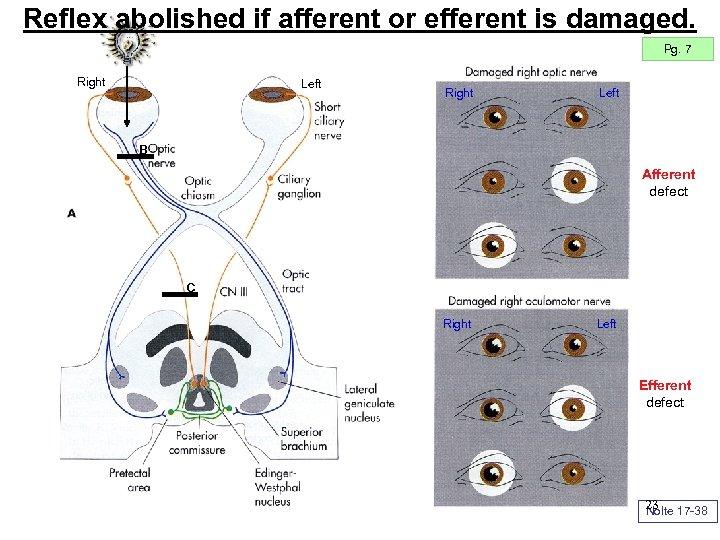 Reflex abolished if afferent or efferent is damaged. Pg. 7 Right Left B Afferent