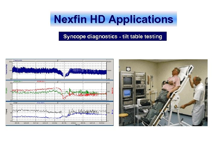 Nexfin HD Applications Syncope diagnostics - tilt table testing