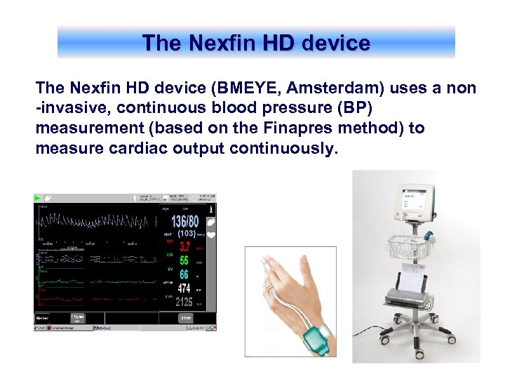 The Nexfin HD device (BMEYE, Amsterdam) uses a non -invasive, continuous blood pressure (BP)