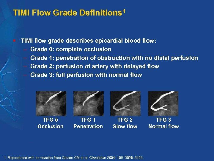 TIMI Flow Grade Definitions 1 § TIMI flow grade describes epicardial blood flow: Grade