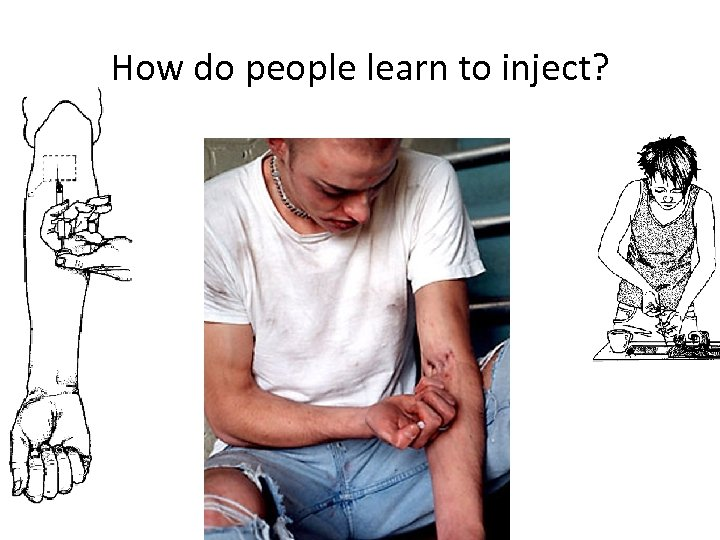 How do people learn to inject?