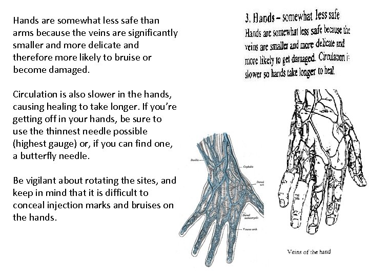 Hands are somewhat less safe than arms because the veins are significantly smaller and
