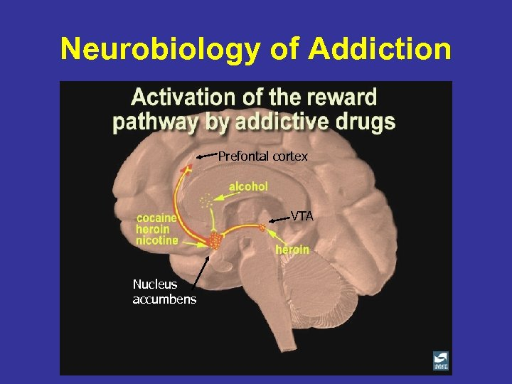 Neurobiology of Addiction Prefontal cortex VTA Nucleus accumbens