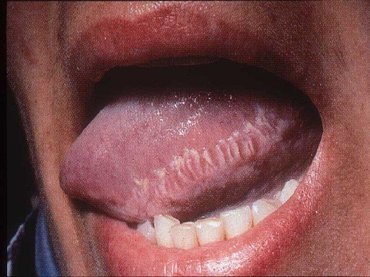 Лейкоплакия в полости рта в картинках