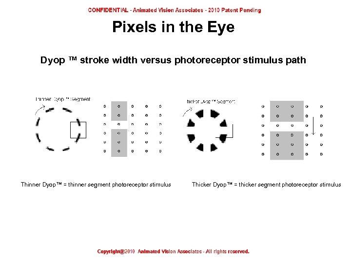 Pixels in the Eye Dyop ™ stroke width versus photoreceptor stimulus path Thinner Dyop™