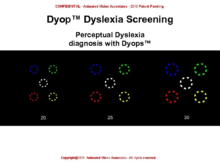 Dyop™ Dyslexia Screening Perceptual Dyslexia diagnosis with Dyops™ Dyop™ Dyslexia screening test