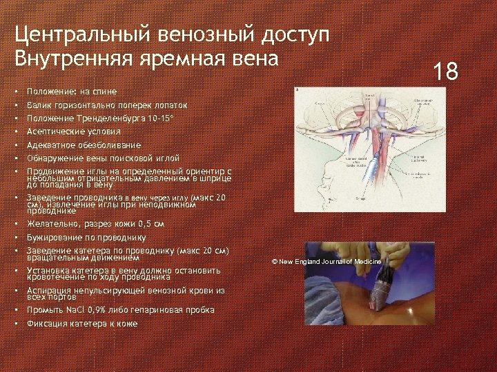 Центральный венозный доступ Внутренняя яремная вена • • • • Положение: на спине Валик