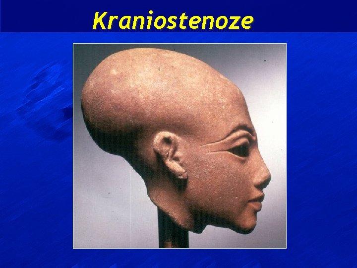 Kraniostenoze