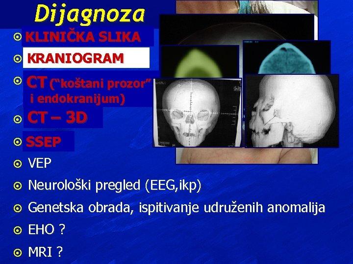 "Dijagnoza ¤ KLINIČKA SLIKA ¤ KRANIOGRAM ¤ CT (""koštani prozor"" endokranijum) ii endokranijum) ¤"