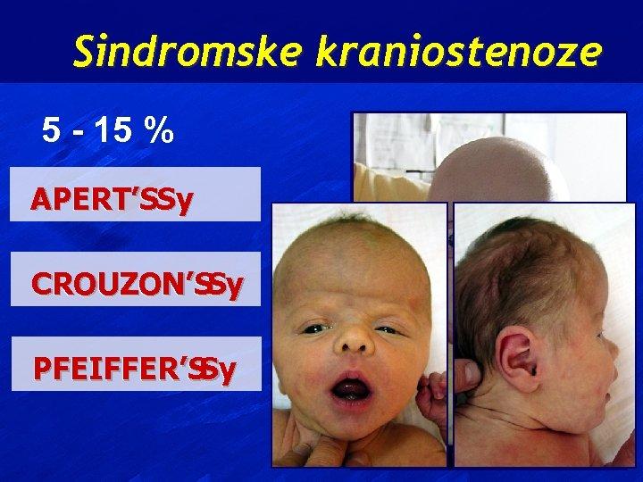 Sindromske kraniostenoze 5 - 15 % APERT'SSy CROUZON'SSy PFEIFFER'S Sy