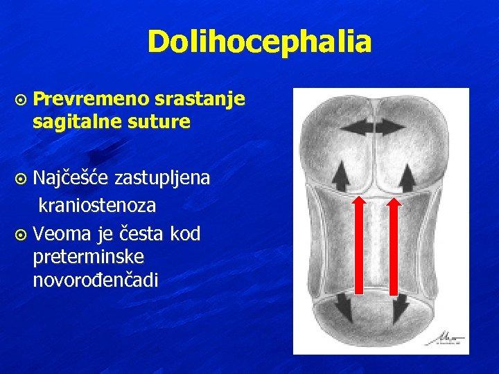 Dolihocephalia ¤ Prevremeno srastanje sagitalne suture Najčešće zastupljena kraniostenoza ¤ Veoma je česta kod