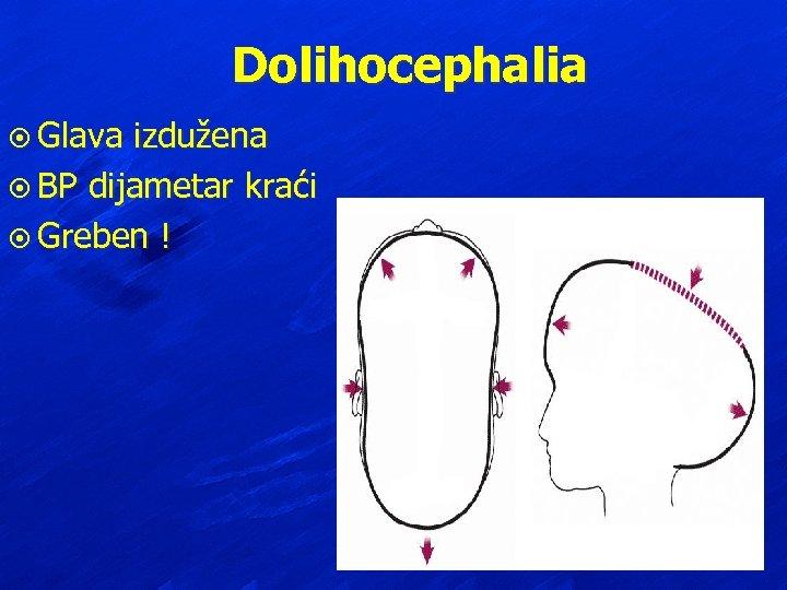 Dolihocephalia ¤ Glava izdužena ¤ BP dijametar kraći ¤ Greben !